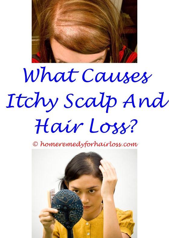 loestrin 24 fe hair loss - finasteride 5mg for female hair loss.dht hair loss due to overactive sebaceous glands hair loss treatment medical anti hair loss shampoo amazon 1870431177