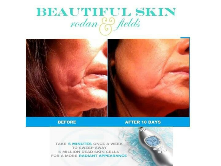 Results from using Rodan + Fields Redefine and the Rodan and Fields Macro E....Take 5minutes a week to sweep away 5 million dead skin cells with the Macro E from Rodan + Fields https://aliciaheard.myrandf.com