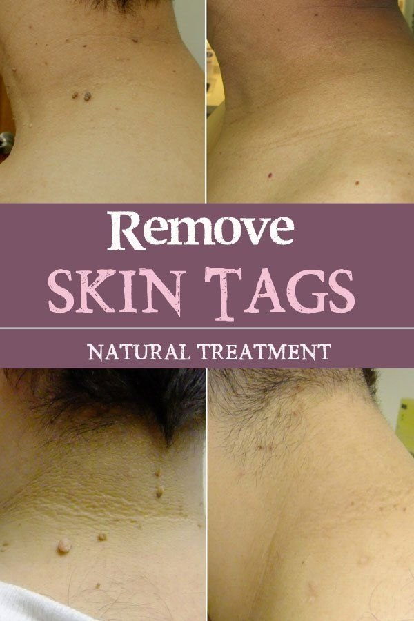 Remove Skin TagsYou need just some apple cider vinegar, around 2-3 tablespoons and some water to dilute the vinegar so your will not experience some itching (because the vinegar is acid). Be sure your skin is clean and dry before applying it. Simply soak a cotton pad and massage it on the skin tag. Apply the treatment 2 per day until the skin tag will be dry and will be gone.