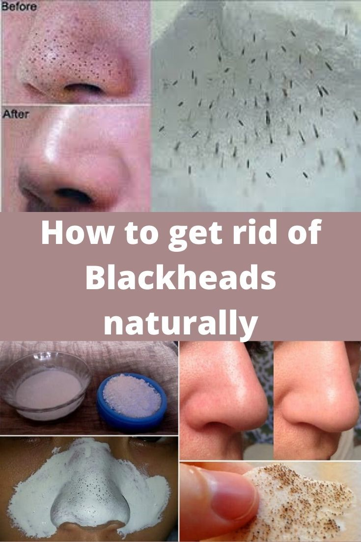 How To Get Rid Of Blackheads Naturally Diy Beauty Face Get Rid
