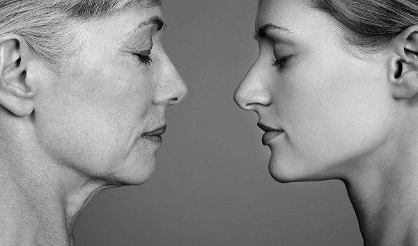 Как эффективно и безболезненно убрать глубокие морщины   Женская страничка