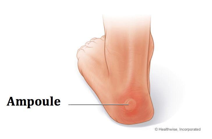 Vous avez acheté de nouvelles chaussures ? Alors, vous souffrez sûrement des ampoules classiques au niveau des talons ou des écorchures au niveau des orteils. Lire la suite /ici :http://www.sport-nutrition2015.blogspot.com