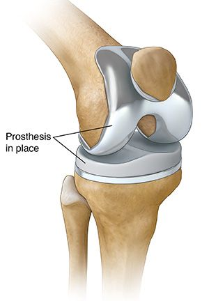 24 best maxillo facial and oral surgeon images on pinterest joint total knee prosthesis in place ccuart Choice Image