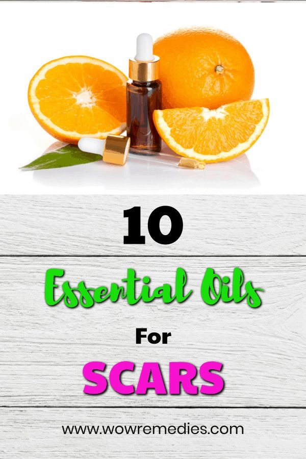 Best Essential Oils For Scars: Acne, Keloids & Cuts (With Recipes)