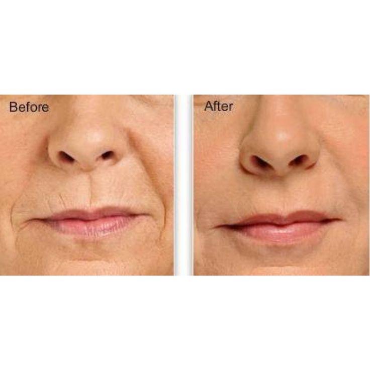 Juvederm Lips | #RevittaCosmeticClinic | #Manhattan and #Brooklyn #NewYork | 212.535.1201 | 718.743.5616 | http://www.revitta.com/ | #lips #LipFiller #juvederm #restylane #FillerLips #beauty #cosmetic #face #LipEnhancement #LipRejuvenation #LipAugmentation #LipLines #FullLips #InjectLips #gorgeous #kiss #love