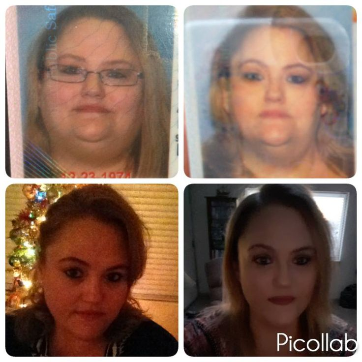 Check out Laurie's HCG testimonial http://myhcgwellness.net/portafolio/