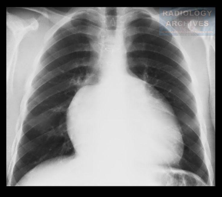 Radiology  Archives: Καρδιομεγαλία (Ανωμαλία Ebstein*)