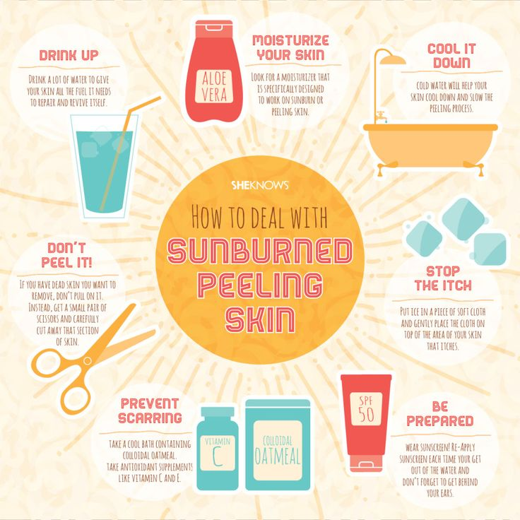 6 peeling skin remedies we all need after a bad sunburn.