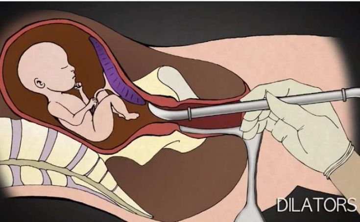 He performed 1,200 abortions. In new viral video, he wants you to see what abortion really looks like | News | LifeSite https://www.lifesitenews.com/news/he-performed-1200-abortions.-in-new-videos-he-wants-you-to-see-what-abortio?utm_source=LifePetitions petition signers