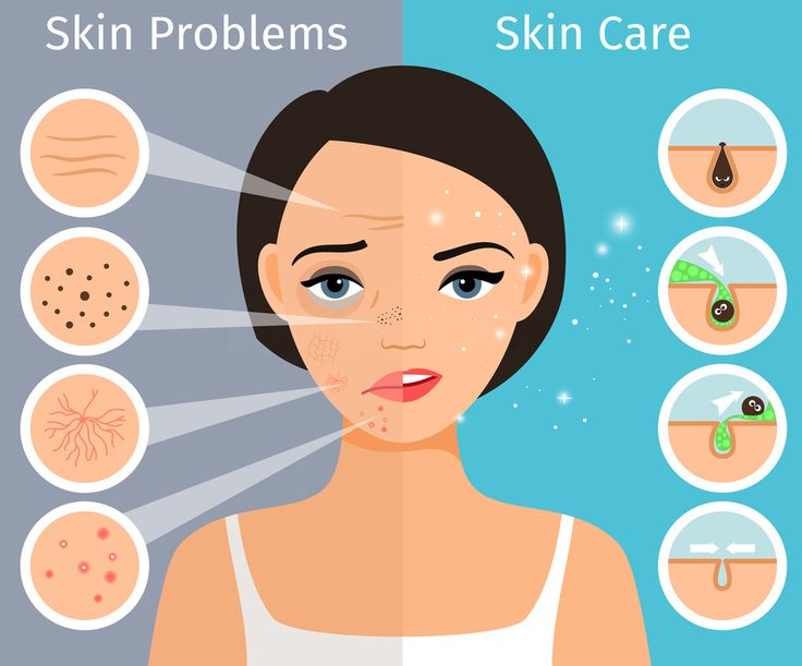 Home Remedies For Dark Spots on Face https://www.youtube.com/watch?v=5ECvlw_6GHA  #cucumber #tutorial #beauty #diy #skin #puffyface #undereyes #hudabeauty #video #spa #skinroutine #nose #today #clinic#operation #healthcare #hot