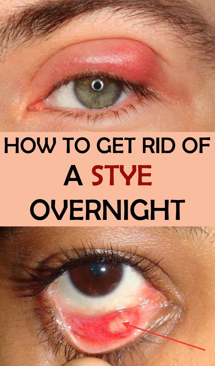 Learn how to get rid of a stye overnight.