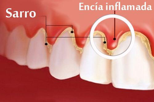Tratamiento natural de la gingivitis o encías sangrantes - La gingivitis es una enfermedad bucal generalmente bacteriana que provoca inflamación y sangrado de las encías. Puede estar causada por una mala higiene, por una mala alimentación o por problemas digestivos. También puede influir el crecimiento de las muelas de juicio.