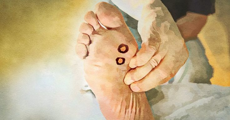 4 Home Remedies For Plantar Warts That Are Worth A Shot http://www.wartalooza.com/treatments/all-natural-wart-removal