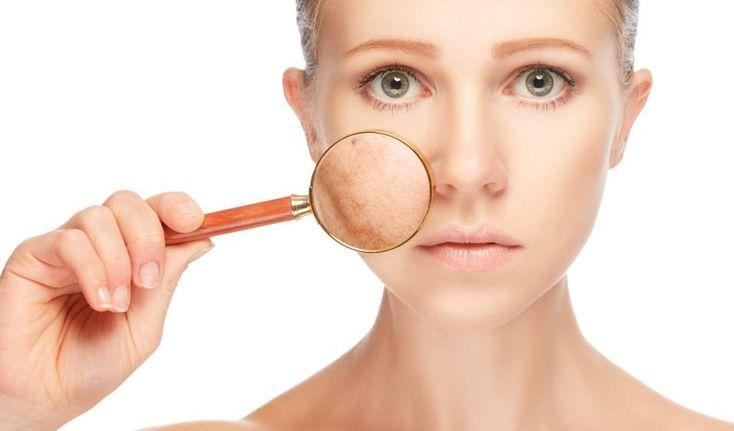 Diese Maske entfernt nach dem zweiten Gebrauch Flecken, als ob sie Magie, Narben… Gesundheit und Schönheit