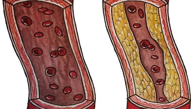 Un estudio con stents coronarios en pacientes con angina de pecho subraya el potencial del efecto placebo