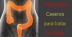 7 remedios caseros para el tratamiento de la colitis ulcerosa