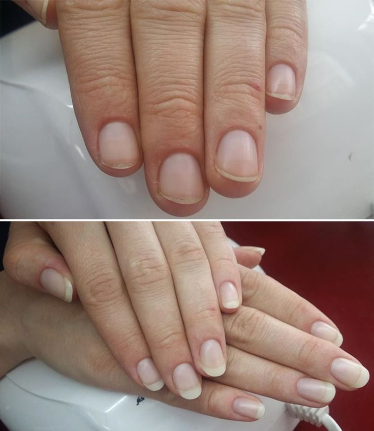The Natural Look!  Identical to natural nails, even unpolished