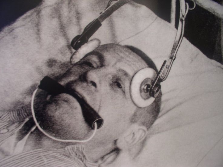 Patient of the Karl-Bonhoeffer-Nevenklinik getting an electro shoc, 1930's. No © needed.