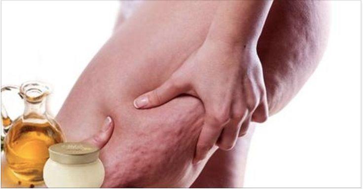 A celulite é uma inflamação nas células de gordura.Muita gente pensa que se trata de um problema relacionado com o excesso de peso.Mas não é bem assim.Pessoas magras também podem sofrer deste mal.