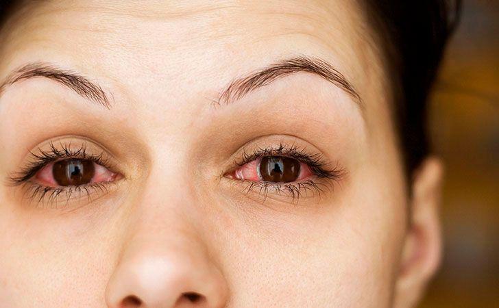 11 Ways Makeup Can Damage Your Eyes   Lifescript.com