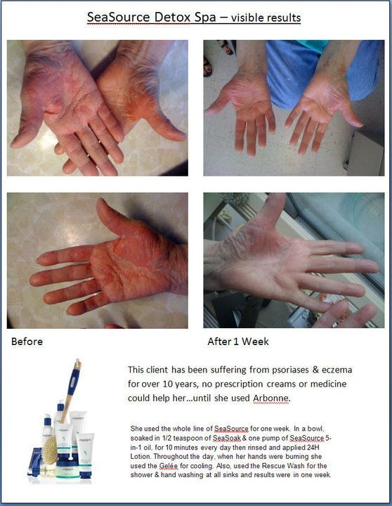 Arbonne Sea Source Detox Spa: Visible Results. If anyone woud like to try before they buy I have samples.. or order online kathyshaheen.arbonne.com