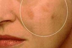 Un exceso de pigmentación causa manchas oscuras en la piel afectando la estética de la persona, dicho exceso de pigmentación puede ser reducido y eliminado con algunos remedios naturales. SIGUE LEYENDO EN: http://alimentosparacurar.com/remedios-caseros/n/911/remedios-para-quitar-manchas-oscuras-en-la-piel.html