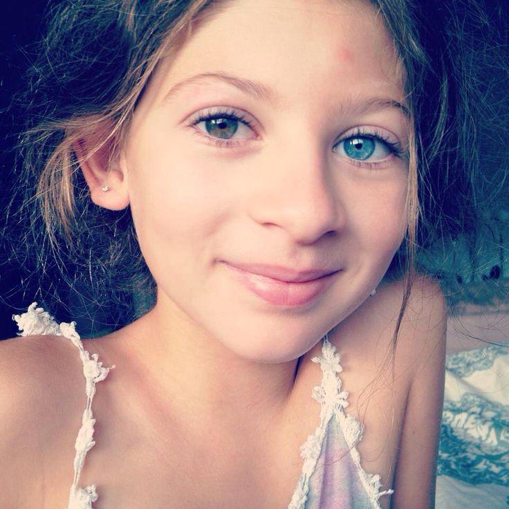 Complete heterochromia