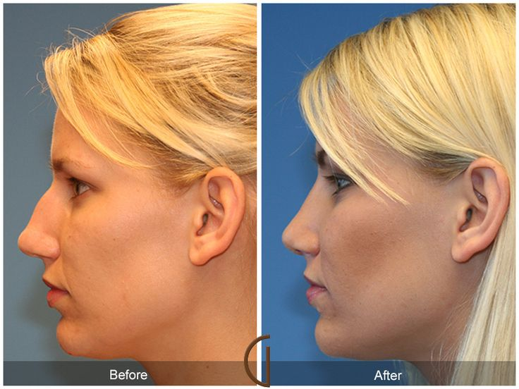 Before and After Rhinoplasty Gallery Orange County