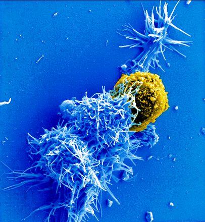 Los virus linfotrópicos T humanos (HTLV-1 y 2) pertenecen al grupo de los RETROVIRUS. Son virus esféricos, grandes, con envuelta lipídica, cápside icosaédrica, nucleocápside helicoidal y 2 copias idénticas de RNAss de polaridad positiva. Llevan transcriptasa inversa. Transmisión sexual, parenteral y a través de la leche materna. Causan leucemia de células T en adulto y paraparesia espástica tropical. #HTLV #virustransmisionsexual