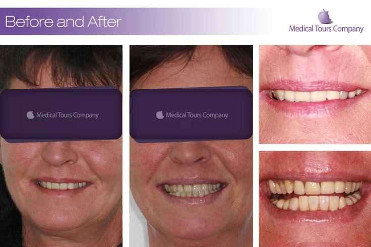 Cazuri before & after #coroane dentare #tratamente dentare