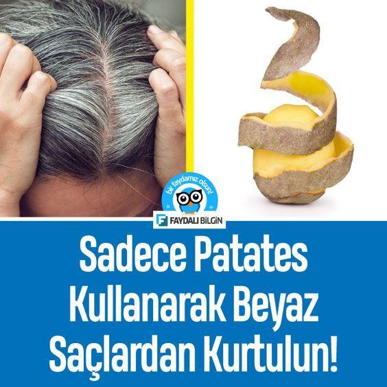 Sadece Patates Kullanarak Oluşan Beyaz Saçlardan Kurtulun! - Kesin Çözüm #saç #saçbakımı #beyaz #patates #kadın @faydalibilgin