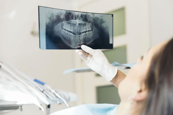 Dental problems such as tooth decay and infections can often only be properly diagnosed by looking beneath the surface with a digital x-ray machine.