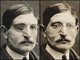 wwi tin masks - Google Search: War Surgery, Swearing Soldiers, Faces Masks, Templates, Google Search, Soldiers Disfigur, Facials Prosthesi, Pictures War, Copper Masks Lik