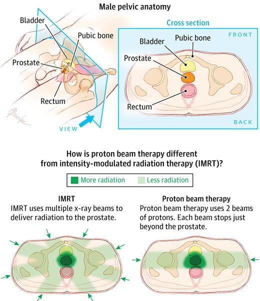 Proton Beam Therapy for Prostate Cancer. JAMA. 2014;311(14):1462. doi:10.1001/jama.2014.1016.