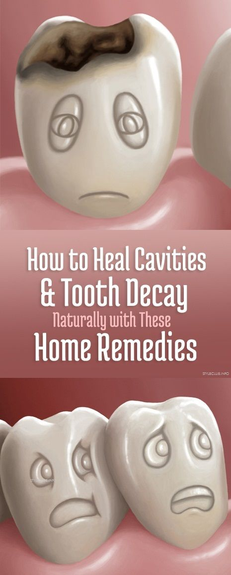 How to Heal Cavities and Tooth Decay Naturally with These Home Remedies -