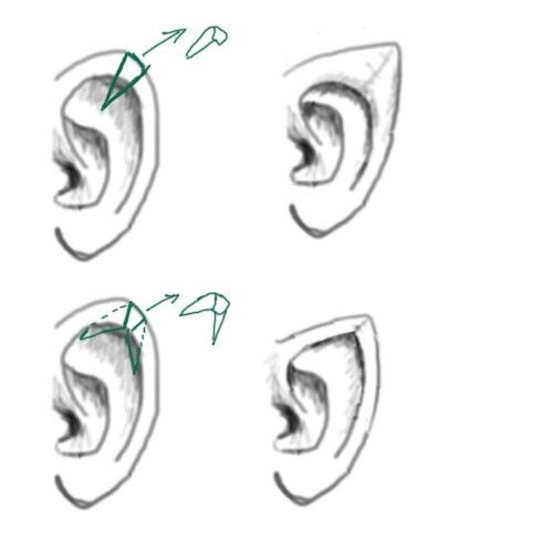 19 Best Ear Pointing Images On Pinterest