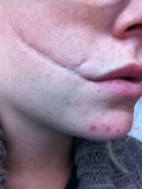 Allison Beauregard's scar, except hers goes under her chin, not to her lip.