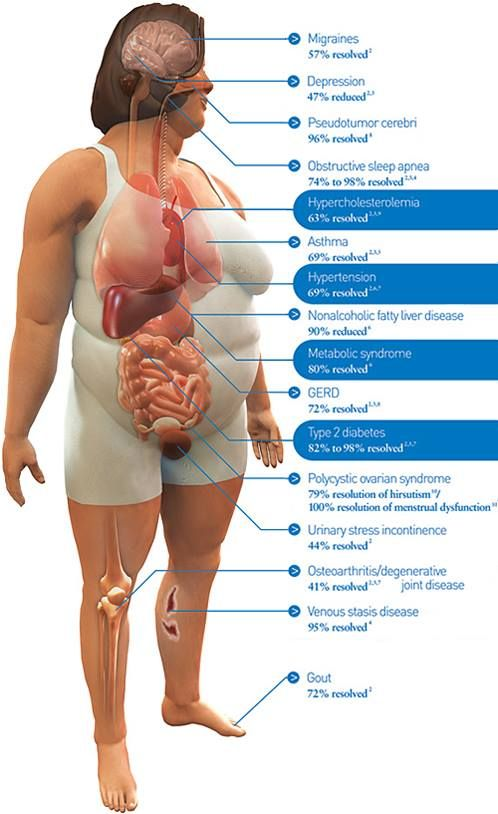 Image result for bariatric surgery for knee