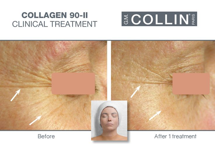 G.M. Collin Collagen 90-II - Before & After picture #beauty #cosmetics #skincare #clinical #clinicaltreatment #spa #spatreatment #antiaging #wrinkles #finelines #hydration #collagen #Collagen90II #gmcollin #gmcollinparis #gmcollinskincare