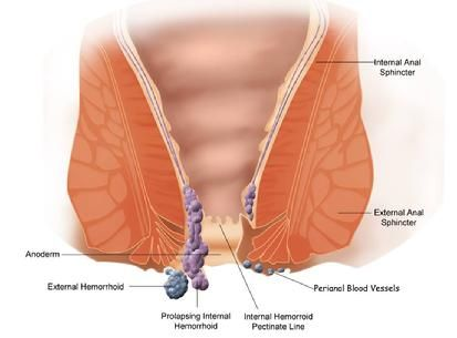 Guide for Hemorrhoids Causes and Prevention