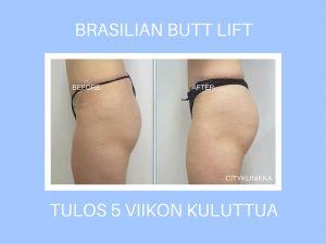 Before and after Brazilian butt lift.  Rasvansiirto peppun, Brazilian buttlift - ennen ja jälkeen.   Cityklinikka, p. 0201 777 288