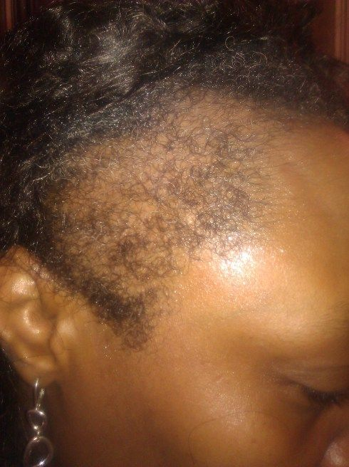 """How I Helped my Mom Regrow her Edges in 5 Months: """"JBCO (Jamaican black castor oil) every night and moisturize and seal the rest of her hair.."""""""