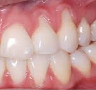 Most people don't know they have gum recession because it occurs gradually. The first sign of gum recession is usually tooth sensitivity and you may notice a tooth looks longer than normal. Gum recession is where part of the gum tissue that surrounds