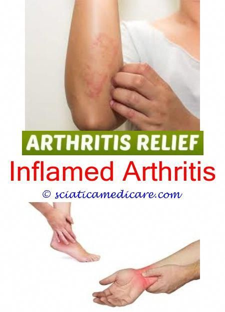 Gloves For Arthritis Pain Dog Arthritis Treatment Over The Counter