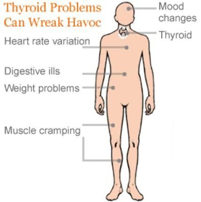 What Are the Main Thyroid Problems, Symptoms and Cures?  Great article about coffee to help under active thyroid that causes weight gain