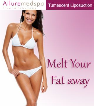 Tumescent Liposuction is most common Surgery procedure in Andheri, Mumbai, India, which removes fat deposits from areas of the body that don't change with diet and exercise.