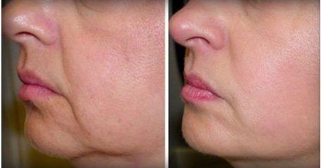 Umso älter wir werden, desto mehr lässt leider auch die Elastizität unsere Haut nach. Welche zwei Zutaten dabei helfen können diesen Prozess aufzuhalten erfahrt ihr hier: