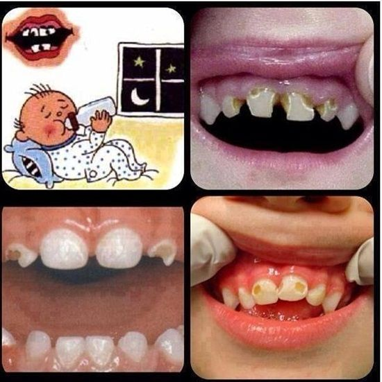 Please don't put a baby to bed with a bottle in their mouth unless it is water. Baby Bottle Tooth Decay, or Early Childhood Caries (EEC) is most common in the upper front teeth, but the back teeth can be affected too. It is mostly caused from baby spending too much time with a bottle in their mouth containing any liquid with sugar in it, including milk and juice. Dentaltown - Patient Education Ideas