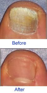 Toenail Fungus Treatment Results