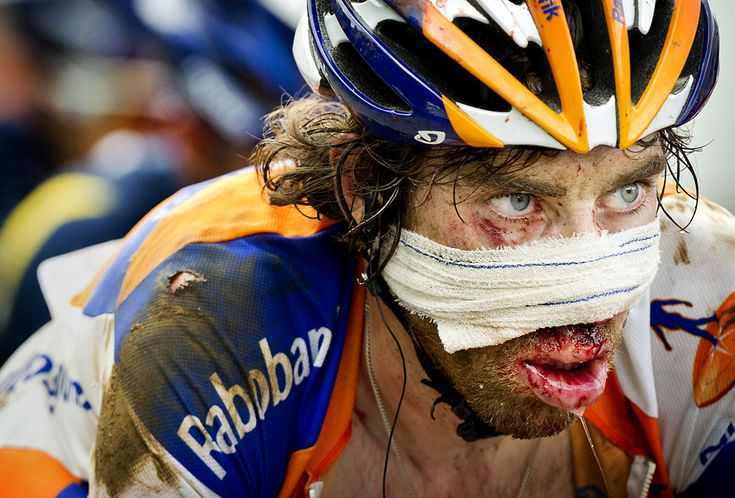 """""""Dutch rider Laurens ten Dam is covered with blood after a face plant on a descent from the Col d'Agnes mountain pass on July 16, 2011. Ten Dam finished the 168.5 kms stage with gauze wrapped around his face to cover his bloodied nose. (Koen van Weel/AFP/Getty Images)"""" Source: http://www.boston.com/bigpicture/2011/07/2011_tour_de_france_part_2.html"""